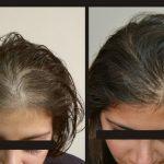 Alopecia androgenetica: Sintomi, come riconoscerla e cause