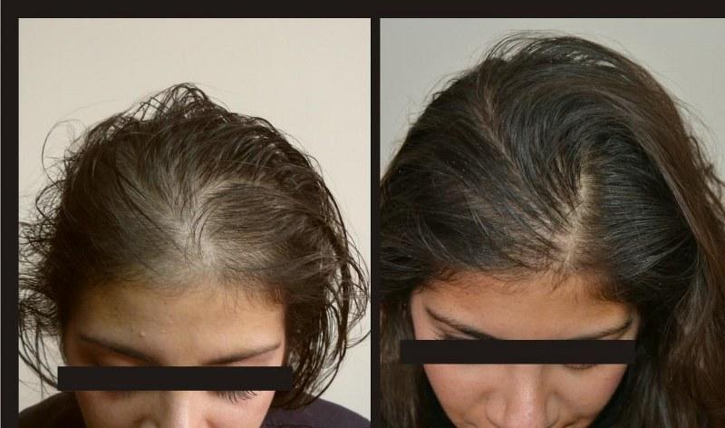 alopecia androgenetica sintomi