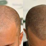 Una soluzione per la calvizia : tricopigmentazione