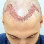 Trapianto di capelli: dove farlo e perché